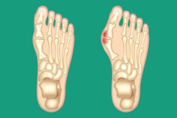 Bunion Removal